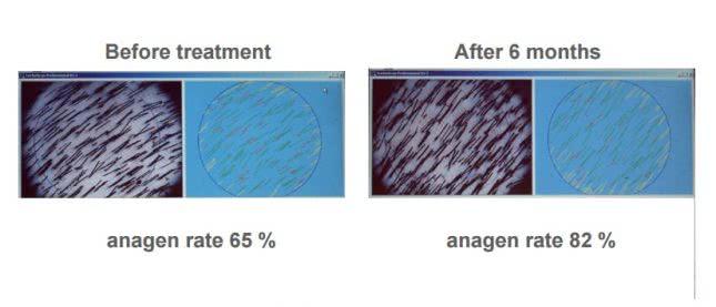 パントガール使用による髪密度の変化(6ヶ月後)