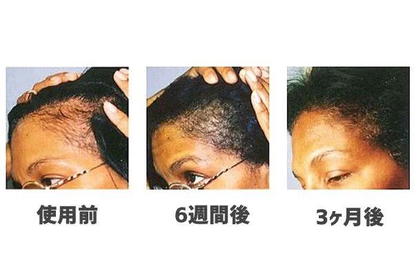 パントガールの前髪・生え際への効果(3ヶ月~6ヶ月後)
