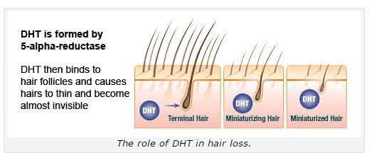 ヘアーオメガ・フォーム(セラム)はDHT阻害効果のあるミノキシジル育毛剤