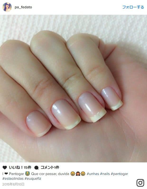 パントガールで爪が綺麗になった女性