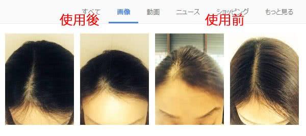 渋谷セントラルクリニック院長・河村優子医師のブログのパントスチンの効果が分かる写真