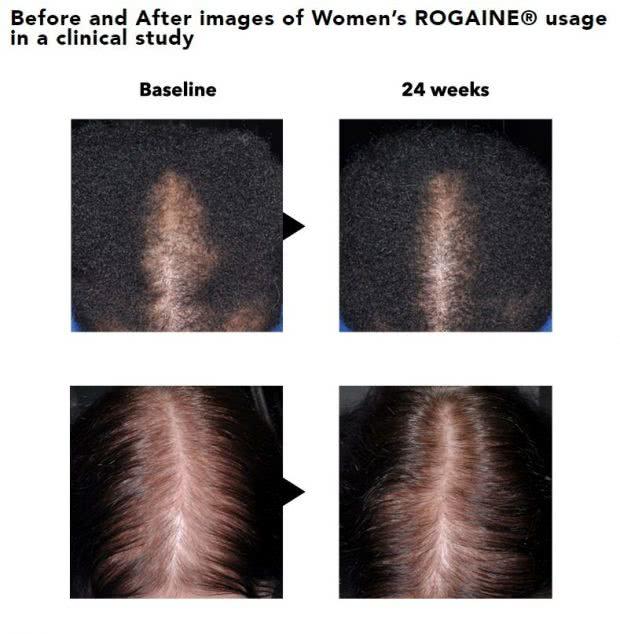 女性用ロゲインの効果を示した使用前後の写真の画像(6ヶ月後)
