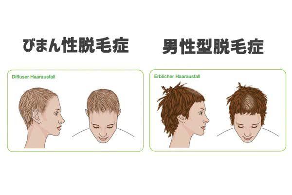 びまん性脱毛症と男性型脱毛症(遺伝性)の違い