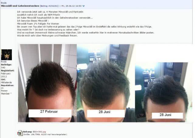 男性がパントスチン使用した効果の写真(画像)