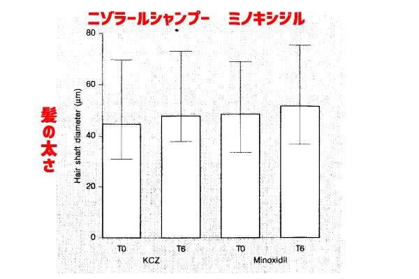 ニゾラールシャンプーとミノキシジル育毛剤の効果比較(2%)