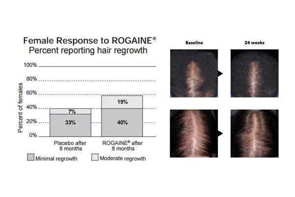 女性用ロゲイン2%の効果のデータと写真