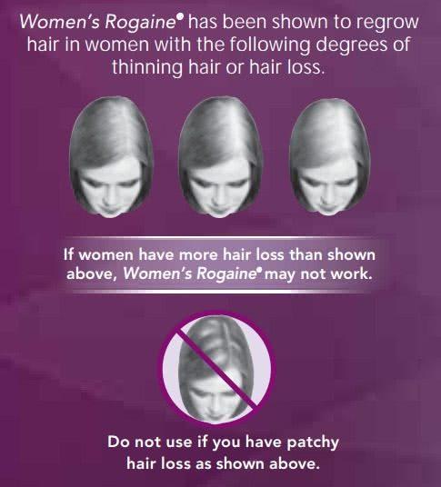 女性用ロゲインが効果のある薄毛のタイプ