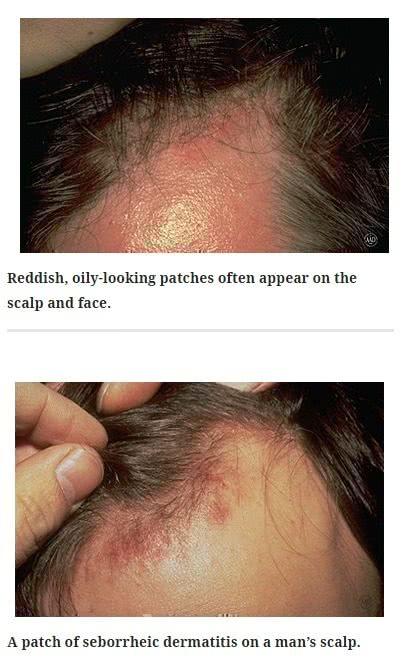 頭皮の脂漏性皮膚炎の症例写真