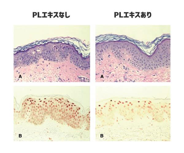 Fernblock(PLエキス)のDNA損傷を保護する効果